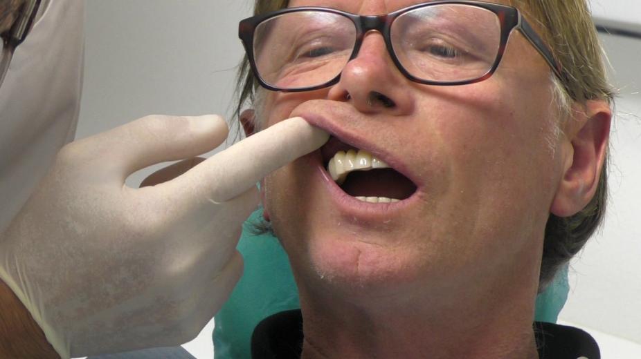 Implantologia fissa a carico immediato